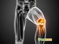 骨折關節黏連 活血祛瘀藥可舒緩