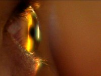 青光眼患者 當心腦中風等三高疾病上身