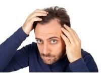 掉髮民眾平均36個月才就診 醫:已快掉光