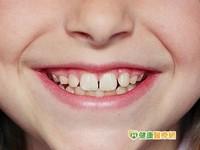 5歲兒童齲齒率近8成 塗氟可降低