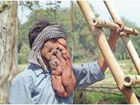印度象人臉長4千克肉瘤 夢想咬一口多汁蘋果
