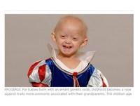 英14歲少女患早衰症 容貌身體已達105歲