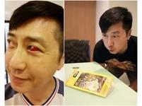 庾澄慶退出綜藝圈日夜忙演唱會 壓力大到眼白暴紅血