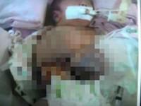 男嬰腹部長頭多條腿 產檢11次竟未發現異狀《ETtoday 新聞雲》