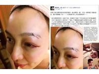 范瑋琪上廁所迷糊摔破眉頭 滿臉是血縫25針!