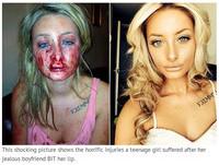英國甜美正妹臉書與異性聊天 恐怖男友咬下她嘴唇毀容