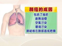 肺癌四期轉移腦 高雄長庚小分子「標靶治療」腫瘤消失