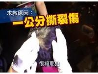 頭頂1cm撕裂傷叫救護車 男:我要去醫院好嗎?很痛欸