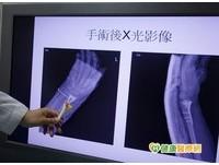 3D列印用途廣 有助手術一目瞭然