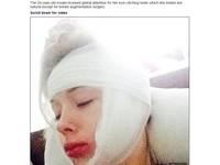 烏克蘭「真人芭比」自爆被揍 頭部重傷包成「木乃伊」