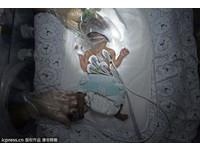 「筷子寶寶」被流產哇哇大哭 660克因母愛奇蹟存活