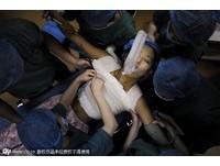 女大生「小劉亦菲」隆乳當胸模 身上插滿管子