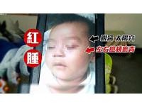 2月男嬰被狠保母掌摑、棉被蓋臉 家屬怒:花錢去被打