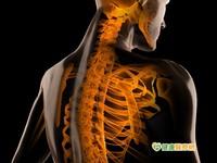 嚴重脊椎骨折 小心恐易癱瘓