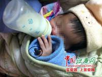 一根頭髮勒壞小指 未滿月女嬰要截肢