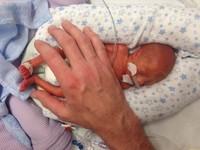 英女執意生下「死胎」遭白眼 635公克寶寶奇蹟生存