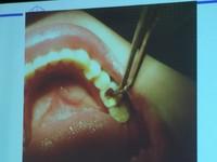生孩子就掉牙?孕媽咪一口爛牙 也易讓嬰兒齲齒、早產