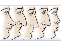 阿湯哥羅馬鼻、華仔鷹鉤鼻 14種鼻型你是哪一種?
