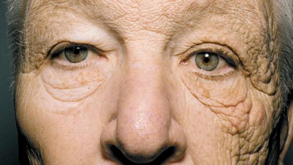d97278 陽光加速皮膚老化的鐵證 69歲司機左邊臉像90歲!