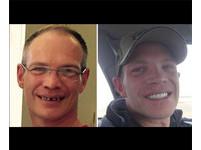 美國好心男掏79萬 幫助服務生裝假牙