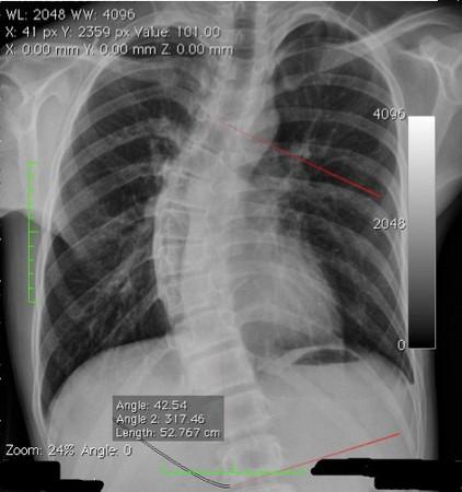 喜歡打電動!高中新生3%罹患脊椎側彎可能壓迫心臟。(圖/台中市澄清醫院提供)