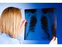 肺癌成新國病...死亡人數超過肝癌 衛福部明年試辦篩檢