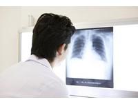 健保雲端共享「個人化」 醫院照的X光未來手機就能查