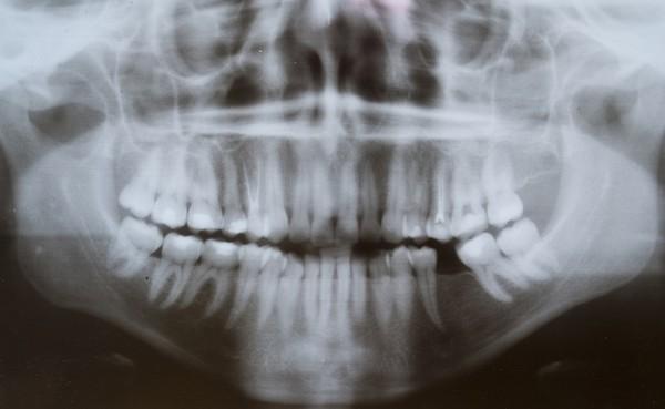 牙齒,牙周病,X光。(圖/達志/示意圖)