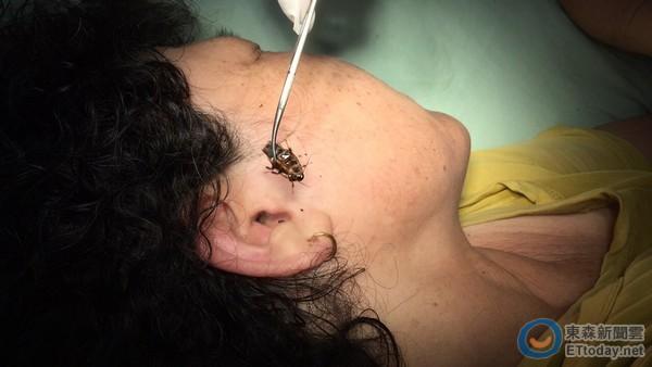 蟲蟲鑽耳摳不出 醫夾出3公分「小強」...翅膀還在動