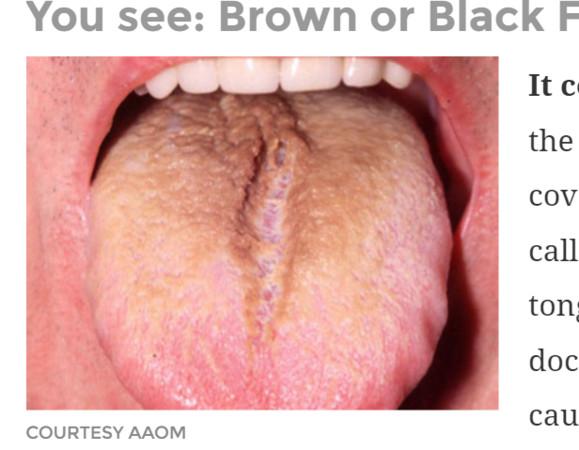 ㄌㄩㄝ!從「9種舌頭顏色、狀態」 看出健康警訊