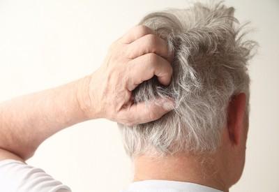 頭皮爆癢!醫授「7招」不再手癢狂抓...先問洗髮精挑對了嗎?