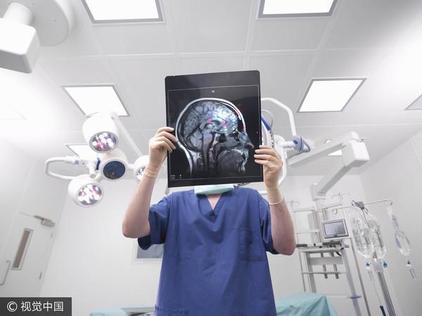醫生,腦,X光片,檢查,開刀(圖/視覺中國CFP)