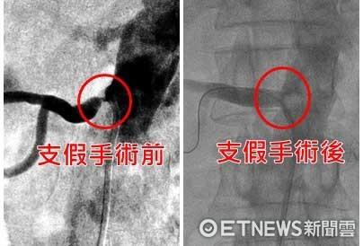 ▲腎動脈狹窄治療前後比較。(圖/記者呂曉雯攝)