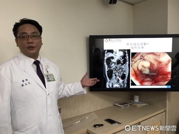 大腸支架緩解腸阻塞。(圖/記者趙于婷攝)