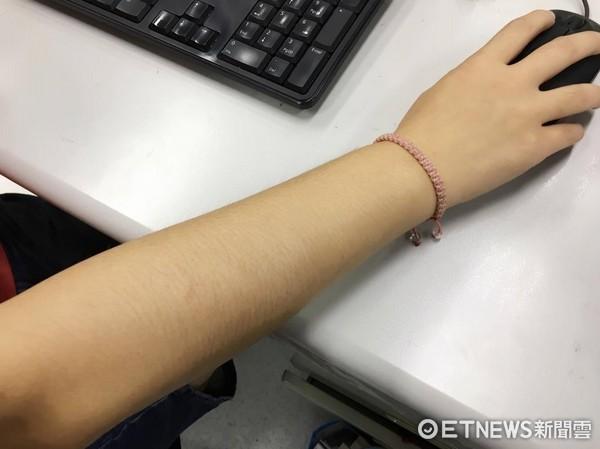 手毛,右手。(圖/記者李佳蓉攝)