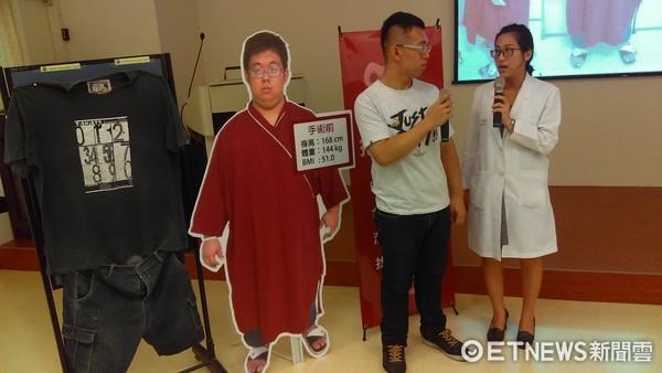 111公斤女靠手術「減掉半個自己」。(圖/中國醫藥大學附設醫院)