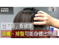 頭癢、吹頭會掉髮...這些警訊你有?秋天保養從「頭」開始