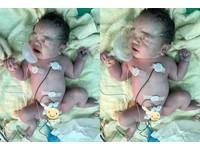 一出生就有心臟病 女嬰緊抓氧氣罩「我要活下來!」