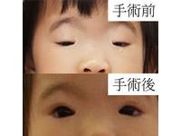 2歲小眼妹眼縫僅有綠豆大 阻礙視覺得抬頭才能看世界