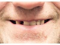 每年近7千人罹「口腔癌」 專家:吸菸+吃檳榔風險增89倍