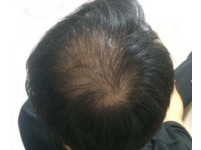 工時長壓力大! 24歲工程師工作6個月「頭頂禿光」