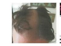 顧客亂動!髮型師怒剪耳朵 頭髮嚕下去開出「高速公路」