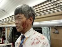 台鐵跨年夜濺血! 花東莒光號列車長遭旅客持酒瓶攻擊頭部