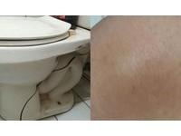 「少林鐵膝功」撞裂馬桶只有瘀青 網笑:維骨力吃很多