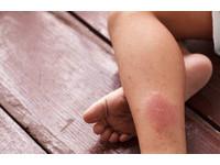 美髮師雙腳突腫成麵龜 久站「深層靜脈栓塞」上身險截肢