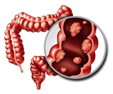 「吃全素」預防大腸癌?專家揭「殘酷真相」:別傻了!