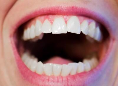 不要咬冰塊!醫曝「6大習慣」易毀琺瑯質…牙齒變透明是警訊