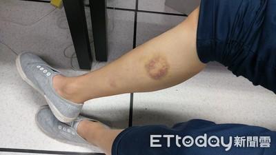 手腳莫名瘀青?醫解析「2周紫轉黃」關鍵期...沒消失該就醫了