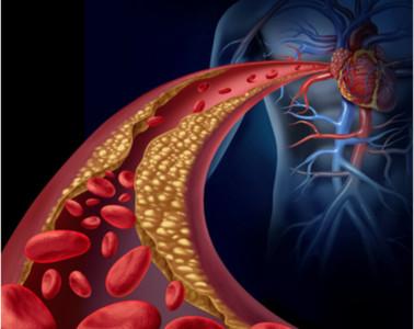 「清淡飲食」加運動就能控制高血脂? 醫:大錯特錯!