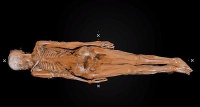 工地挖出鐵棺!工人以為命案屍體 專家驚:是19世紀女屍